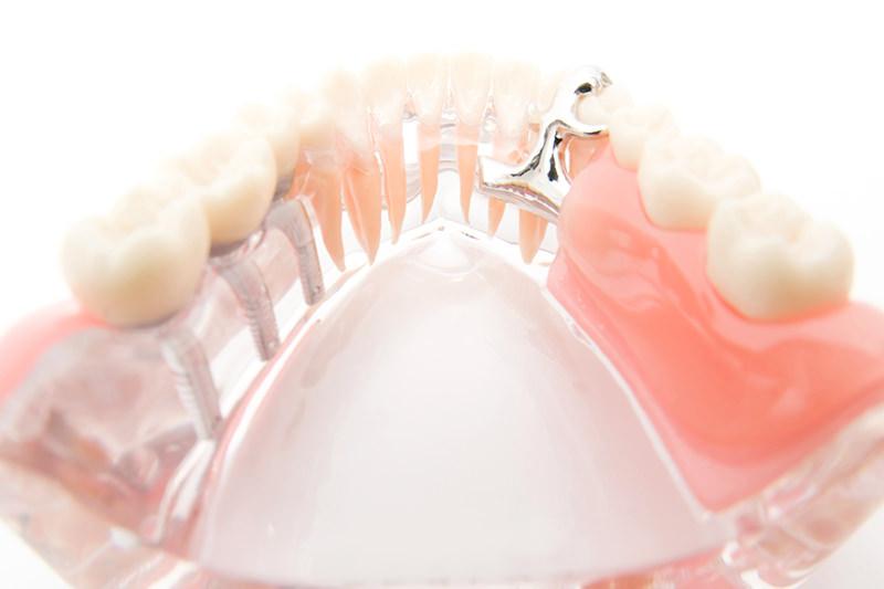 虫歯や歯周病で歯を失ったら